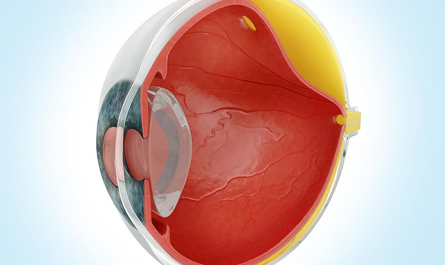 deslocamento-de-retina